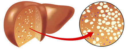 Bệnh gan nhiễm mỡ có mấy cấp độ? 1