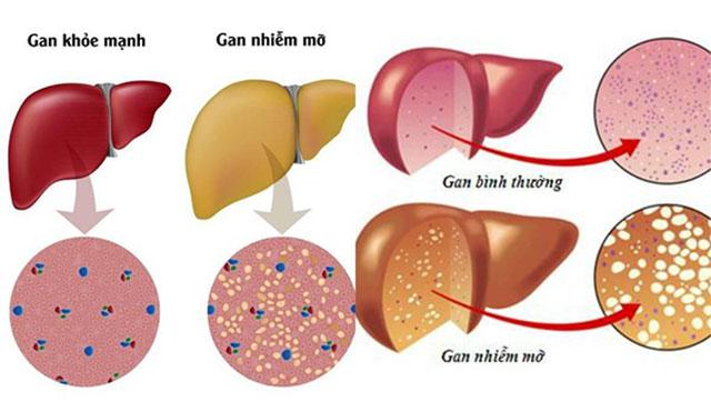 Bệnh gan nhiễm mỡ là gì - hiểu thế nào cho đúng? 1