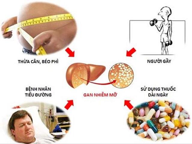 Dưới đây là một số nguyên nhân có thể liên quan đến gan nhiễm mỡ: 1