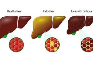 Gan nhiễm mỡ tưởng bệnh nhẹ – xơ gan trong gang tấc