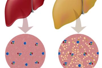Những sai lầm phổ biến về điều trị gan nhiễm mỡ